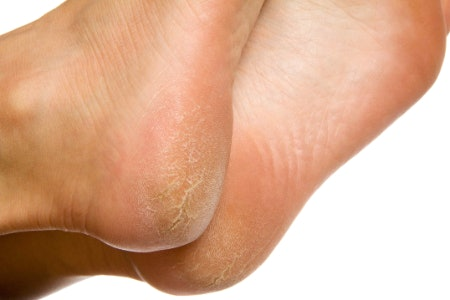 A Rich, Thick Balm Applied Regularly Is Best for Very Dry Skin and Cracked Heels
